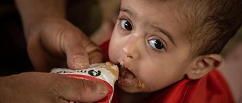170 TL bağışınla gıdasız kalmış 20 çocuğa bir günlük tedavi edici besin sağlayabilirsin.